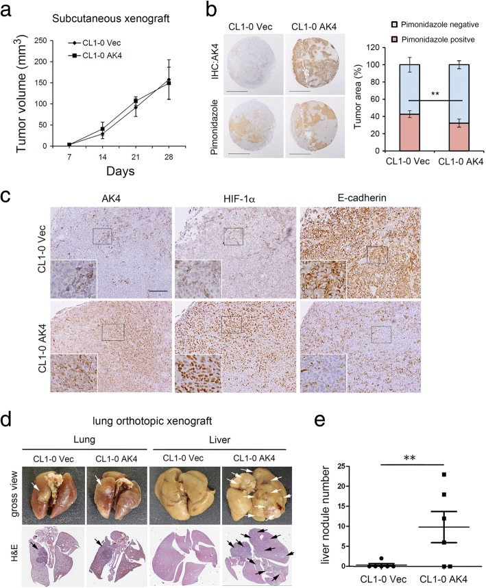 AK4 overexpression reduces hypoxic necrosis and promotes liver metastasis in vivo. a NOD scid Gamma (NSG) mice were injected subcutaneously with CL1-0 Vec and CL1-0 AK4 cells (1 × 10 6 cells/100 μL) in the left and right flanks, respectively. Volumes of CL1-0 Vec and CL1-0 AK4 tumors were measured weekly as indicated. b Left, pimonidazole staining and IHC images of AK4 expression in CL1-0 Vec and CL1-0 AK4 subcutaneous xenograft tumors. Scale bar represents 2 mm. Right, pimonidazole-positive tumor area was detected and quantified by Definiens imaging analysis algorithm. ** P ≤ 0.01. c Representative IHC staining for AK4, HIF-1α, and E-cadherin expression in subcutaneous xenograft tumors from CL1-0 vector or CL1-0 AK4 cells. Scale bar represents 100 μm. d NSG mice were injected orthotopically in the left lung with CL1-0 Vec or CL1-0 AK4 cells at a concentration of 1 × 10 5 cells in 10 μL of PBS/Matrigel mixture. Gross view (formalin-fixed) and H E staining images of lungs and livers from mice orthotopically injected with CL1-0 Vec or CL1-0 AK4 cells at day 30. The white and black arrows indicate tumor nodules in the gross view and H E staining images, respectively. e Quantification of liver nodule number in mice orthotopically injected with CL1-0 Vec or CL1-0 AK4 cells at day 30. The results are presented as the mean ± SD of at least three separate experiments. Two-tailed, unpaired Student's t tests were used for all pairwise comparisons. * P ≤ 0.05; ** P ≤ 0.01