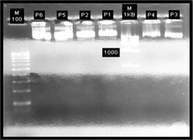 Electrophoresis result of recombinant plasmid pGEM-T Easy-Mpt83 (P1-P6).