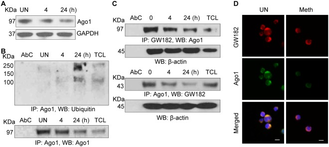 Meth induced degradation of Ago1 and altered structural integrity of P-bodies: ( A ) CD4 + T-cells were untreated or treated with Meth (100 µM) for 0, 4 and 24 hours, lysed and Ago1 expression was analyzed by Western blotting. GAPDH used as a loading control. Full-length blots are presented in Supplementary Fig. S4 ( B ) CD4 + T-cell lysates in ( A ) were immunoprecipitated with Ago1 antibody and subjected to Western blot analysis using Ubiquitin antibody. Ago1 served as a loading control; AbC = Antibody control, TCL = Total cell lysate. Results are representative of 3 independent experiments. ( C ) CD4 + T-cell lysates in (A) were immunoprecipitated with GW182 antibody (upper panel) or Ago1 antibody (lower panel) and subjected to Western blot analysis using Ago1 (upper panel) or GW182 (lower panel) antibodies. B-Actin served as a loading control; AbC = Antibody control, TCL = Total cell lysate. Results are representative of 3 independent experiments. Full-length blots are presented in Supplementary Fig. S4 ( D ) Confocal images of GW182 and Ago1 interaction in CD4 + T-cells, untreated or treated with Meth (100 µM) for 24 hours. Scale bar = 10 µm. Results are representative of 3 independent experiments.