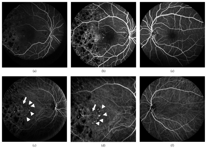 Fundus fluorescein angiogram (55°) of right eye (a, b) and left eye (e). <t>Indocyanine</t> green angiography <t>(ICGA)</t> of right eye (55° c, 30° d) and left eye (f). The branching vascular network (BVN, white arrows) and terminal hyperfluorescent polyps (white arrowheads) were clearly visible on ICGA. These also demonstrated a characteristic hypofluorescent halo. Note that the BVN originates from a hypofluorescent laser scar ( ∗ in c and d). FFA of the right eye revealed macular ischaemia. FFA and ICGA of the left eye were normal.