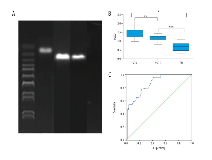 Agarose electrophoresis of MAD2 expression. MAD2 expression was assessed by agarose electrophoresis. GAPDH was used for internal reference and the length was 146 bp. The length of MAD2 was 163 bp. SCLC, small cell lung cancer; NSCLC, non-small cell lung cancer; PN, pulmonary nodule ( A ). MAD2 expression in SCLC, NSCLC, and PN groups. The quantity of MAD2 expression was assessed by qRt-PCR. * SCLC vs. PN, ** SCLC vs. NSCLC; *** NSCLC vs. PN, P