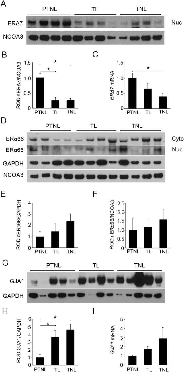 Expression of ERα isoforms and GJA1 in pregnant human myometrium. Representative western blot (A) and densitometric analysis (B) demonstrate ERΔ7 protein in nuclear (Nuc) extracts significantly declined in term laboring (TL) and term non-laboring (TNL) myometrium compared to myometrium from preterm non-laboring (PTNL) women. (C) ERΔ7 mRNA levels are also down-regulated in the TNL samples as compared to PTNL. Representative western blot (D) and densitometric analysis demonstrated no significant change in ERα66 levels in cytoplasmic (Cyto) (E) and nuclear (F) fractions of TL and TNL myometrium as compared to PTNL. Representative western blot (G) and densitometric analysis (H) demonstrated cytoplasmic GJA1 expression levels were significantly upregulated in the TL and TNL as compared to PTNL myometrium. An increasing trend in GJA1 mRNA levels (I) was also observed towards term. GAPDH and NCOA3 are cytoplasmic and nuclear loading controls. Gene expression was normalized to Rplp0 . *p