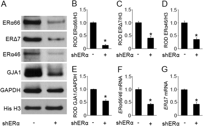 ERα regulation of GJA1 in hTERT-HM cells. RNA and protein extracts were isolated after 96 h of infection with ERα shRNA lentivirus that targets the 3′UTR of ERα mRNA. Representative western blot (A) and densitometric analysis demonstrate a decline in the nuclear ERα66 (B), ERΔ7 isoforms (C) and ERα46 isoforms (D) and the cytoplasmic GJA1 (E) in the hTERT-HM cells upon lentivirus-mediated knockdown of ERα compared to non-silencing pGIPZ shRNA lentiviral control. A significant decline in ERα66/ERα46 (F) and ERΔ7 isoform (G) mRNA levels were also observed in the hTERT-HM cells upon lentivirus-mediated knockdown of ERα compared to non-silencing pGIPZ shRNA lentiviral control. GAPDH and Histone H3 are cytoplasmic and nuclear loading controls. Gene expression was normalized to Rplp0 . *p