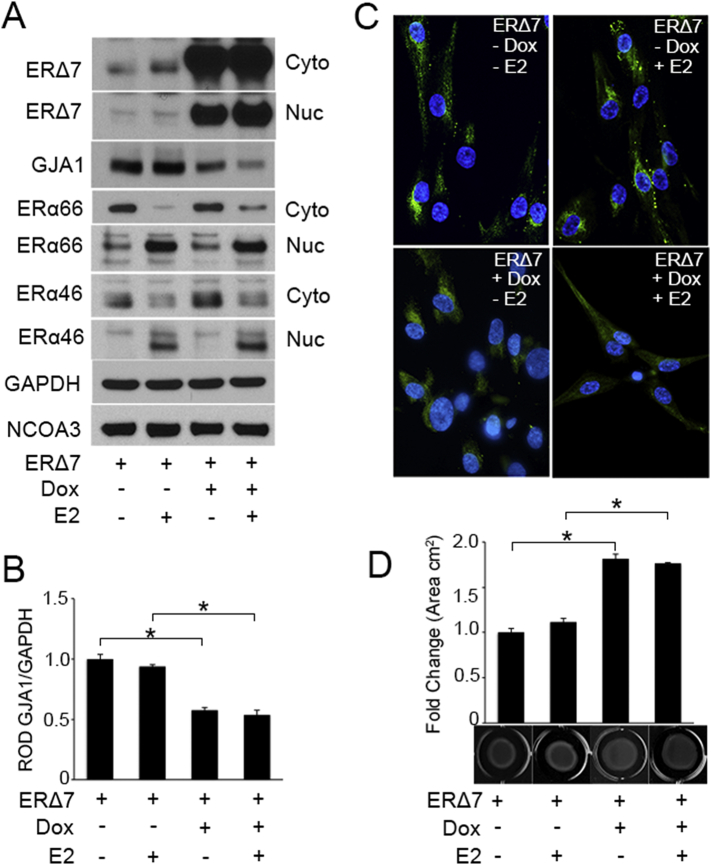 ERΔ7 over-expression inhibits GJA1 expression and disrupts the uterine myocyte contractile ability. ERΔ7 was transiently over-expressed in hTERT-HM Tet3G cells using a doxycycline (Dox; 500 ng/ml) inducible recombinant lentivirus for 48 h in the presence or absence of E2 (100 nM). Representative western blot (A) and densitometric analysis (B) demonstrate a decrease in the protein level of GJA1 upon ERΔ7 overexpression in the presence and absence of E2. Western blot analysis (A) also demonstrates E2 mediated nuclear translocation of ERα66 and ERα46, though no changes in ERα66 and ERα46 levels were found to be associated with ERΔ7 overexpression. Immunocytochemical analysis (C) of hTERT-HM Tet3G cells indicates GJA1 was largely limited to the perinuclear area and cell membrane in control and E2 treated uterine myocytes and was diminished upon ERΔ7 overexpression (Dox) in the presence and absence of E2. (D) Collagen gel contraction analysis reveals reduced contractile responsiveness in ERΔ7 overexpressing hTERT-HM Tet3G cells both in the absence or presence of E2 (100 nM) compared to control, as a result of decreased GJA1 levels. GAPDH and NCOA3 are cytoplasmic and nuclear loading controls. A representative gel with mean gel area (cm 2 ) is given for each group (n = 4), each experiment was performed in triplicate. *p