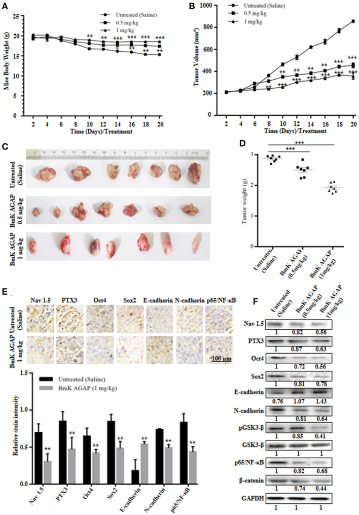 BmK AGAP inhibits the growth of breast xenograft tumors, stem-like features and epithelial-mesenchymal transition in a mouse model. (A) Weight changes in rBmK AGAP-treated and untreated tumor model mice. BALB/c nude mice were treated with rBmK AGAP or saline and the changes in body weight of mice bearing xenograft tumors were examined for 20 days. (B) Tumor volume of tumors from rBmK AGAP-treated and untreated tumor model mice. Xenograft tumor volume were calculated from measuring the length, height and width of tumors using digital caliper following rBmK AGAP treatment. (C) Image of excised xenograft tumors from the different treatment groups after 20 days of tumor implantation. (D) Quantitative analysis of excised tumor weight. Tumors excised from tumor-bearing mice sacrificed after day 20 were weighed on a digital weighting apparatus. (E) Immunohistochemical assessment of stemness, EMT, and inflammation markers in excised tumor tissues. Xenograft tumor tissues were stained with antibodies against Nav 1.5, PTX3, Oct4, Sox2, E-cadherin, N-cadherin, and p65/NF-κB and examined by immunohistochemical staining (Scale bars = 100 μm; magnification, 200x). (F) Protein expression assessment of PTX3, stemness, EMT, Wnt/β-catenin pathway and NF-κB, in excised tumors. Xenograft tumor tissues from rBmK AGAP-treated and untreated mice were lyse. Equal amount of protein samples were subjected to 12% SDS-PAGE and analyzed by western blotting with antibodies against Nav 1.5, PTX3, Oct4, Sox2, E-cadherin, N-cadherin, pGSK3-β, GSK3-β, p65/NF-κB, and β-catenin. GAPDH was used as an internal control. The data was statistically significant at * P