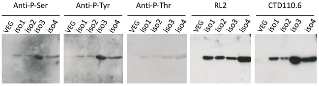 Immunodetection of phosphorylation and O -GlcNAcylation of OBP isoforms from S . scrofa . Each well contains a normalized quantity (5 μg) of the four HPLC fractions. HPLC-purified short-size VEG was used as negative control. Anti-P-Ser : anti-phosphoserine antibodies (1:500 dilution); Anti-P-Tyr : <t>anti-phosphotyrosine</t> antibodies (1:2,000); Anti-P-Thr : anti-phosphothreonine antibodies (1:500); RL2 (1:2,000), CTD110.6 (1:4,000). Secondary antibodies for anti-phosphorylation antibodies at 1:40,000 dilution (rabbit IgG-HRP linked whole antibodies), ECL Plus detection (11 min exposure). Secondary antibodies for O -GlcNAc detection: goat anti-mouse IgG-HRP linked (1:30,000) for RL2, and rabbit anti-mouse IgM-HRP linked (1:30,000) for CTD110.6, ECL Plus detection (30 s exposure).