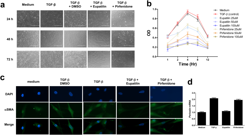 Inhibition of TGF-β–induced fibrosis by eupatilin. (a) DHLFs (5 × 10 6 cells) were seeded in fibroblast growth medium (FBM), grown overnight, and then stimulated with control medium, TGF-β (5 ng/ml), TGF-β plus eupatilin (50 μM), or TGF-β plus pirfenidone (50 μM) for 72 h. Morphological change was monitored by phase-contrast microscopy at 40× magnification. (b) Proliferation of DHLFs was substantially attenuated by eupatilin and pirfenidone. DHLFs were treated with 0, 25, 50, and 100 μM eupatilin or pirfenidone in the presence of TGF-β for the indicated periods prior to estimation of cell proliferation using the CCK-8 assay. The experiment was performed in triplicate. (c) Eupatilin, but not pirfenidone, inhibited TGF-β–induced α–smooth muscle actin (αSMA). ICC was performed using anti-mouse αSMA antibody. (d) Total RNA was isolated from DHLFs stimulated with control medium, TGF-β, TGF-β plus eupatilin, or TGF-β plus pirfenidone for 48 h, and then subjected to real-time PCR analysis using primers against POSTN or VIM . Standard deviations were calculated from the results of three independent PCRs.