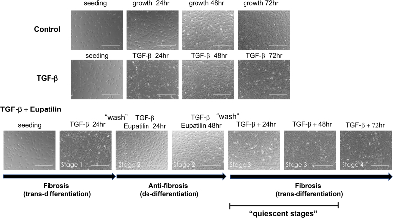 Dedifferentiation occurs during blocking of fibrosis by eupatilin. ONGHEPA1 cells were stimulated with <t>TGF-β</t> for 72 h or not stimulated; in parallel, another set of ONGHEPA1 cells were stimulated with TGF-β for 24 h, washed, and stimulated with TGF-β + eupatilin for 48 h. After washing, the resultant cells were continuously stimulated with TGF-β for 72 h. Morphological changes were monitored under a light microscope. Each pathological stage is indicated by arrows and corresponding terms.