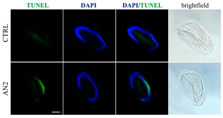 Apoptosis in ciliates. <t>TUNEL</t> assay in E. aediculatus treated with 2 μg/mL AN2 or vehicle (CTRL) for 2 h. <t>DAPI</t> (blue) was used for nuclei detection. The images are representative of 10 independent experiments. Scale bar = 30 µm.