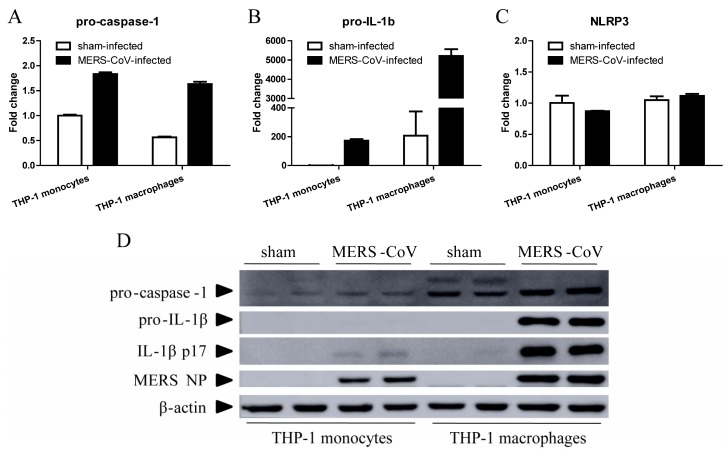 MERS-CoV infection induces pyroptosis in THP-1 macrophages. THP-1 monocytes and macrophages were infected with MERS-CoV for 24 h. Total RNA and protein was then extracted from the cells using TRIzol Reagent. ( A – C ) Total RNA was used for RT-qPCR to detect transcription of pro-caspase-1, pro-IL-1β, and NLRP3. Data are expressed as means ± SEM ( n = 2 per group). ( D ) Samples of total protein were subjected to Western blotting to detect pro-caspase-1, pro-IL-1β, activated IL-1β, and MERS NP.