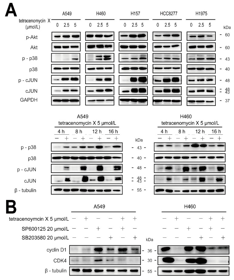 Tetracenomycin X decreases the expression of cyclin D1 by the activation of p38 and c-JUN. ( A ) The <t>A549</t> and H460 cells were treated with tetracenomycin X for the indicated times or treated with various concentrations of tetracenomycin X for 8 h. The expression levels of the proteins were determined using western blotting. ( B ) The viability of the A5459 and H460 cells was determined after a 4-h pre-treatment with SP600125 or SB203580 and an 8-h treatment with tetracenomycin X. The expression levels of the proteins were determined using western blotting.