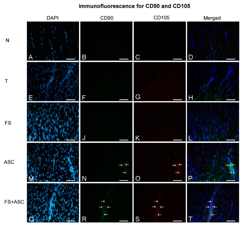 Immunofluorescence for CD90 and CD105 observed in the central portion of the TR of tendons on the 21st day ( n = 5). Groups N ( A – D ), T ( E – H ), FS ( I – L ), ASC ( M – P ) and FS + ASC ( Q – T ). Note CD90 and CD105 (→) positive marking in the transected region of ASC and FS + ASC groups. Bar = 50 μm.