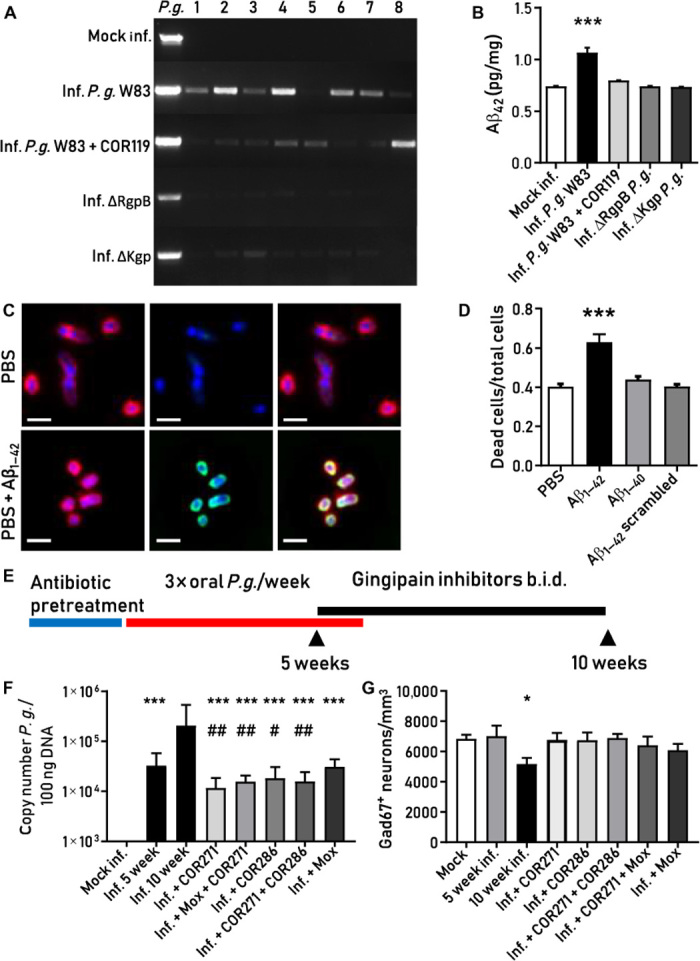 P. gingivalis invasion of the brain induces an Aβ 1–42 response that is blocked by gingipain inhibition in mice. ( A ) P. gingivalis PCR product in mouse brains after oral infection with P. gingivalis W83, with or without treatment with the Kgp inhibitor COR119, or infection with gingipain knockout strain ΔRgpB or ΔKgp. Lanes 1 to 8 represent individual experimental animals. In the first lane ( P.g. ), P. gingivalis W83 was used as a positive control. ( B ) P. gingivalis W83–infected mice, but not COR119-treated mice or mice infected with gingipain knockouts, had significantly higher Aβ 1–42 levels compared to mock-infected mice (*** P