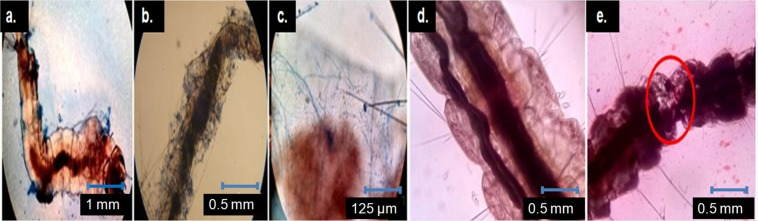 T. asperellum (TaspSKGN2) spores and ME treated dead Anopheles 3 rd instar larvae (microscopic view). ( a ) TaspSKGN2 spores (lactophenol cotton blue stained) attached on the outer body surface and blocking spiracles of the treated larvae (4x). ( b , c ) Hyphal outgrowth from the inner surface of the infected larvae (10x and 40x, respectively]. ( d ) Non treated larvae stained with alizarine (10x) e. Tissue degeneration of the ME treated larvae (red marked area) stained with alizarine (10x).