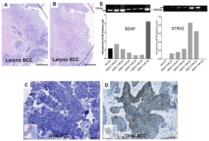 mRNA expression of brain-derived neurotrophic factor (BDNF) and NTRK2, protein synthesis of NTRK2 in head and neck squamous cell carcinoma (HNSCC) ( A , B ): In situ hybridization of antisense ( A ) and sense ( B ) riboprobe for BDNF (blue) in larynx SCC, cell nuclei counterstained in nuclear fast red. The antisense probe shows intensive purple—blue reactive areas, while the tissue reacted with the sense probe is slightly purple—blue stained. ( C ): In situ hybridization of antisense BDNF riboprobe and ( D ): immunohistochemistry of TrkB (brown) in tumor cell nests of oral SCC. A and B and C and D are sequential sections. ( E ): PCR detection of BDNF (519 base pairs, bps), NTRK2 (full protein coding area, 2528 bps) normalized to loading control ACTB (534 bps, not shown, normalized values represented as column bars) gene expression in cDNA samples of control UPPP normal mucosa, immunohistochemically (IHC) TrkB-positive and TrkB-negative HNSCC. BDNF is expressed in both normal and malignant tissue, NTRK2 is not present in normal mucosa, but if positive TrkB IHC staining was detected, the NTRK2 gene expression was also confirmed by PCR, while TrkB-negative IHC was also negative in RT-PCR. ( A – D ) images were taken by the TissueFaxs system, bars: 200 µm: ( A , B ); 100 µm: ( C , D ). Bands densitometry was done using Azurespot 14.2.