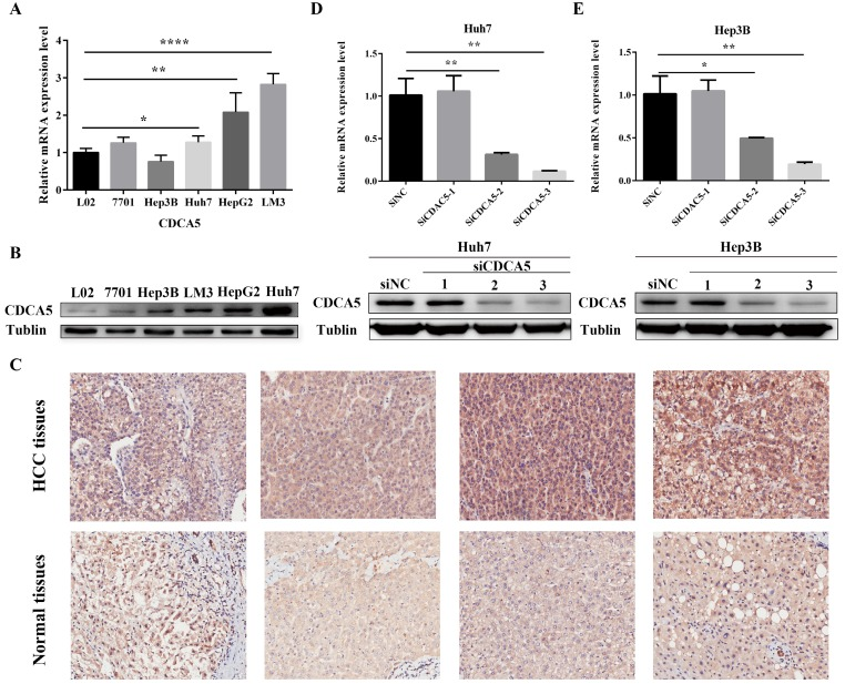Upregulation of hepatic CDCA5 expression in HCC cell lines and patients with HCC and knockdown of CDCA5 in Huh7 and Hep3B. (A) Expression of CDCA5 mRNA in 4 human HCC cell lines and 2 normal human hepatic cells was evaluated by qRT-PCR. (B) Western blots show the CDCA5 protein level compared to Tubulin in HCC cell lines and normal hepatic cells. (C) Representative images of immunohistochemistry staining of liver sections of HCC tissues (n=81) and paired adjacent normal tissues (n=81). Original magnification, ×200. Upper panel, HCC tissues; Lower panel, adjacent normal tissues. (D and E) Western blots and qRT-PCR showing the effect of RNAi on CDCA5 expression. There different siCDCA5s at 50 nM were transfected into human HCC cell lines Huh7 and Hep3B using Lipofectamine 3000. *p