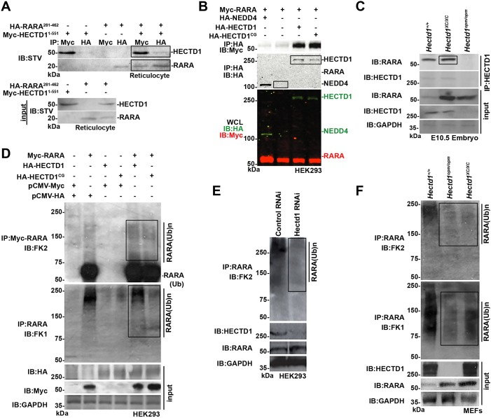 HECTD1 binds to RARA and influences its ubiquitination. (A) HA-RARA(281-462), binds to Myc-HECTD1(1-551) expressed in rabbit reticulocyte lysates. Proteins were immunoprecipitated (IP) as indicated followed by immunoblotting (IB) with streptavidin (STV). (B) RARA binds to HA-HECTD1 and ligase-deficient HA-HECTD1 C2579G (HA-HECTD11 CG ), but not to HA-NEDD4, another HECT domain-containing E3 ligase, in HEK293T cells. WCL, whole-cell lysate. (C) RARA binds HECTD1 in vivo in embryo lysates prepared from E10.5 wild-type and Hectd1 XC/XC mutant embryos. The epitope recognized by the HECTD1 antibody used for immunoprecipitation is not present in Hectd1 opm/opm mutant embryos, thus the failure of HECTD1 opm to pull down RARA serves as a negative control. (D) HECTD1 influences ubiquitination of RARA. HEK293T cells were transfected with Myc-RARA and either HA-HECTD1 or ligase-deficient HECTD1 C2579G . RARA was immunoprecipitated followed by immunoblotting with the FK2 antibody to detect poly- and monoubiquitinated RARA, or FK1 antibody to detect polyubiquitinated RARA. FK2 immunostaining indicates a slight increase in ubiquitinated RARA levels with expression of either wild-type or ligase-defective HECTD1, whereas FK1 immunostaining shows reduced ubiquitinated RARA in HA-HECTD1 C2579G transfected cells, consistent with the predicted dominant-negative activity of this construct. (E) Knockdown of HECTD1 by siRNA in HEK293T cells results in decreased ubiquitinated RARA. (F) MEFs derived from Hectd1 opm/opm and Hectd1 XC/XC mutant embryos demonstrate reduced ubiquitinated proteins in RARA immunoprecipitates and increased RARA levels in mutant compared with wild-type cells. Key positive signals are highlighted in boxes.