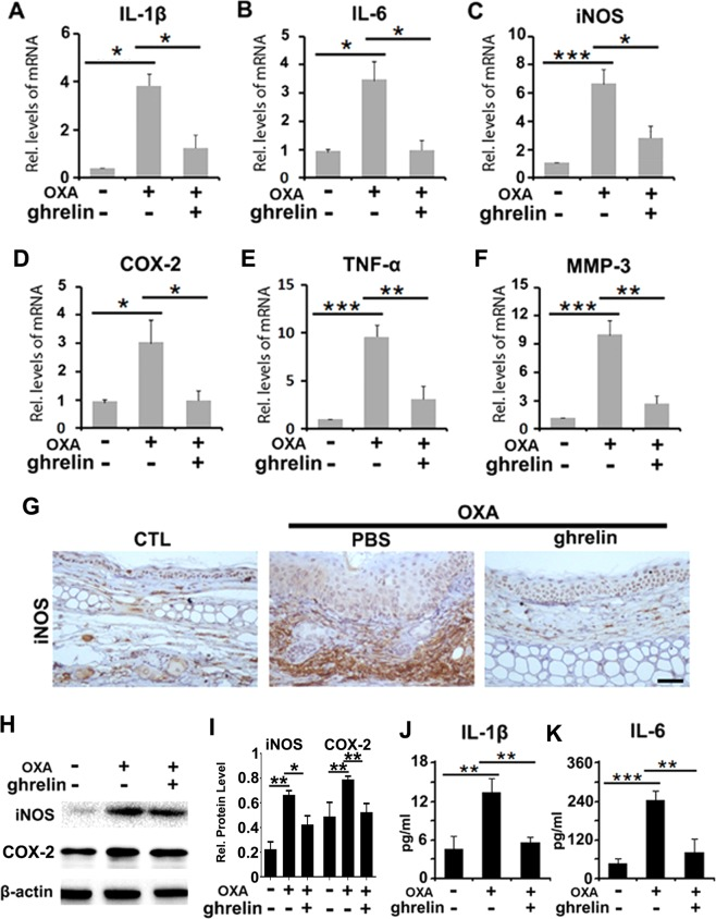 Ghrelin attenuates the secretion of proinflammatory cytokines in an OXA-induced contact dermatitis mouse model. ( A – F ) The levels of IL-1β, IL-6, iNOS, COX-2, TNF-α and MMP-3 were dramatically decreased upon treatment with ghrelin, as shown by real-time PCR. ( G ) iNOS expression was downregulated in mice treated with ghrelin in OXA-induced contact dermatitis, as shown by immunohistochemistry. ( H , I ) The protein levels of iNOS and COX-2 were markedly inhibited with ghrelin treatment, as shown by western blotting. ( J , K ) IL-1β and IL-6 were detected in mouse serum, indicating the ghrelin-mediated reduction in inflammatory cytokines in serum, as shown by ELISA. (*p