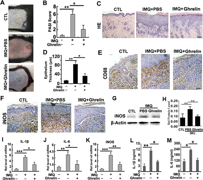 Ghrelin improves psoriasis in an IMQ-induced psoriasis mouse model. ( A ) Improved skin conditions were observed in mice treated with ghrelin. ( B ) Ghrelin treatment led to reduced PASI scores in an IMQ-treated psoriasis mouse model. ( C , D ) A smoother epidermis, lesser degree of parakeratosis, and reduced epidermal thickening were demonstrated upon treatment with ghrelin, as shown by both HE staining and the measurement of epithelial thickness. ( E ) Ghrelin downregulates the expression of CD68, supporting the anti-inflammatory effect of ghrelin in IMQ-induced psoriasis, as shown by immunohistochemistry. ( F ) iNOS is decreased in response to treatment with ghrelin, as shown by immunohistochemistry. ( G , H ) Total protein was extracted from skin tissue, and iNOS expression was decreased upon treatment with ghrelin, as shown by western blotting. ( I – K ) Ghrelin application significantly attenuated the mRNA expression of IL-1β, IL-6 and iNOS, as shown by real-time PCR. ( L , M ) The serum levels of IL-1β and IL-6 were notably reduced by ghrelin administration, as shown by ELISA. (*p