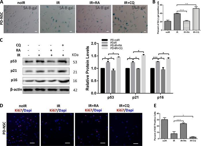 Autophagy was implicated in the IR-induced premature aging of PD-NSCs. a , b Cell senescence induced by irradiation was detected by SA-β-gal staining in the presence of rapamycin or chloroquine. Cells were exposed to 10 Gy X-ray in the presence of 0.04 μM rapamycin or 3 μM chloroquine, incubated for 48 h, and then stained with SA-β-gal. c p16, p21, and p53 expression from rapamycin- or chloroquine-treated NSCs were detected by western blotting and densitometry. d , e The effect of rapamycin or chloroquine on Ki67 expression was visualized by immunostaining. Data represent as the mean ± SD of three independent experiments. Statistical analysis was performed by Student's t -test, * P