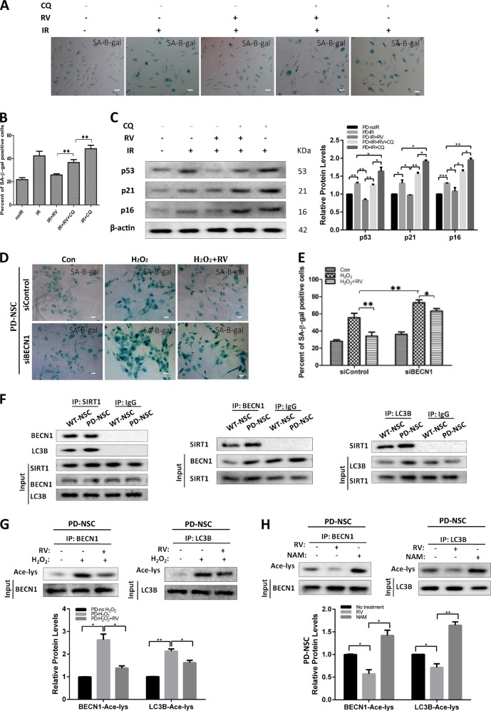 SIRT1 regulated autophagy through physically interacted with and deacetylated BECN1 and LC3B in PD-NSCs. a – c Cell senescence of PD-NSCs treated with or without resveratrol or chloroquine was measured, including <t>SA-β-gal</t> staining ( a , b ) and expression of aging-related genes ( c ), analyzed by western blotting and densitometry. Cells were exposed to 10 Gy X-ray in the presence of 3 μM resveratrol or 3 μM chloroquine, and then incubated for 48 h. d , e Images of cellular senescence in PD-NSCs after knockdown of BECN1 were visualized using SA-β-gal assay. Cells were transfected with siBECN1, and then exposed to 10 Gy X-ray in the presence of 3 μM resveratrol, incubated for 48 h. f The interaction between SIRT1 and autophagy-related genes, LC3B and BECN1 , in PD-NSCs. Cell lysates were immunoprecipitated with anti-SIRT1 or control IgG antibody; and then, reciprocally probed with anti-BECN1 and anti-LC3B. Cell lysates were immunoprecipitated with anti-BECN1, anti-LC3B, or control IgG antibody; and then, reciprocally probed with anti-SIRT1. g Western blot and densitometric analysis of acetylation changes of BECN1 and LC3B after IR treatment in PD-NSCs. BECN1 and LC3B were immunoprecipitated from the total cell lysate of NSCs by BECN1 and LC3B antibody; and then, western blots were probed with anti-acetylated lysine antibody. h Western blot and densitometric analysis of acetylation changes of BECN1 and LC3B after PD-NSCs were treated with SIRT1 activator resveratrol (3 μM) and SIRT1 inhibitor nicotinamide (5 mM). BECN1 and LC3B were immunoprecipitated from the total cell lysate of NSCs by BECN1 and LC3B antibody; and then, western blots were probed with anti-acetylated lysine antibody. Data of the graph were expressed as the mean ± SD. * P