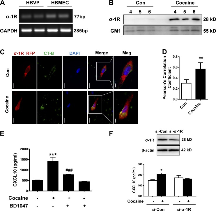 Engagement of σ-1R is critical for cocaine-induced CXCL10 expression in HBVPs. (A) Comparative expression of σ-1R mRNA levels by RT-PCR analysis in both HBVPs and HBMECs. (B) Representative Western blot of σ-1R and GM1 in the lipid raft fractions (4–6) isolated from confluent HBVPs either unexposed or exposed to cocaine using sucrose gradient ultracentrifugation. (C) Representative fluorescence images of HBVPs transfected with σ-1R–RFP plasmid (red fluorescence) and stained with CT-B conjugates <t>Alexa</t> <t>Fluor</t> 488 specific for ganglioside GM1-lipid raft marker (green fluorescence). Bar, 10 µm. Overlay and magnified (mag) images are shown; bar, 5 µm. (D) Quantification of colocalization of σ-1R and CT-B. Two-tailed Student's t test. (E) CXCL10 was assayed by ELISA assay in the supernatants collected from HBVPs pretreated with σ-1R inhibitor BD1047 (10 µM) for 1 h, followed by cocaine exposure for an additional 24 h. One-way ANOVA followed by Bonferroni's post hoc test was used to determine the statistical significance among multiple groups. (F) Representative Western blot of silencing of σ-1R in HBVPs transfected with si–σ-1R. CXCL10 was assayed by ELISA assay in the supernatants collected from HBVPs transfected with si–σ-1R and nonsense si-Con followed by cocaine exposure. One-way ANOVA followed by Bonferroni's post hoc test was used to determine the statistical significance among multiple groups. All data are presented as means ± SD of three or four individual experiments (biological replicates). *, P