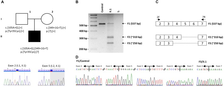 Identification of two mutations in IFT27 . (A) Pedigree of the reported family with one affected individual and segregation analysis of the two IFT27 mutations. Example of Sanger sequencing profiles for the heterozygous individuals. (B) PCR amplification was performed on <t>RNA</t> extracted from blood of individual II.1 and a healthy unrelated control amplified between exon 2 and exon 7. (C) IFT27 <t>cDNA</t> scheme representing the obtained fragments with size and expected composition. PCR primers are positioned. (D) Sanger sequencing of normal F1 in a healthy unrelated control (left side showing each exon boundaries from exon 3 to 7) and cut and eluted F3 band in individual II.1 demonstrating the absence of exons 4 to 6 (right side).
