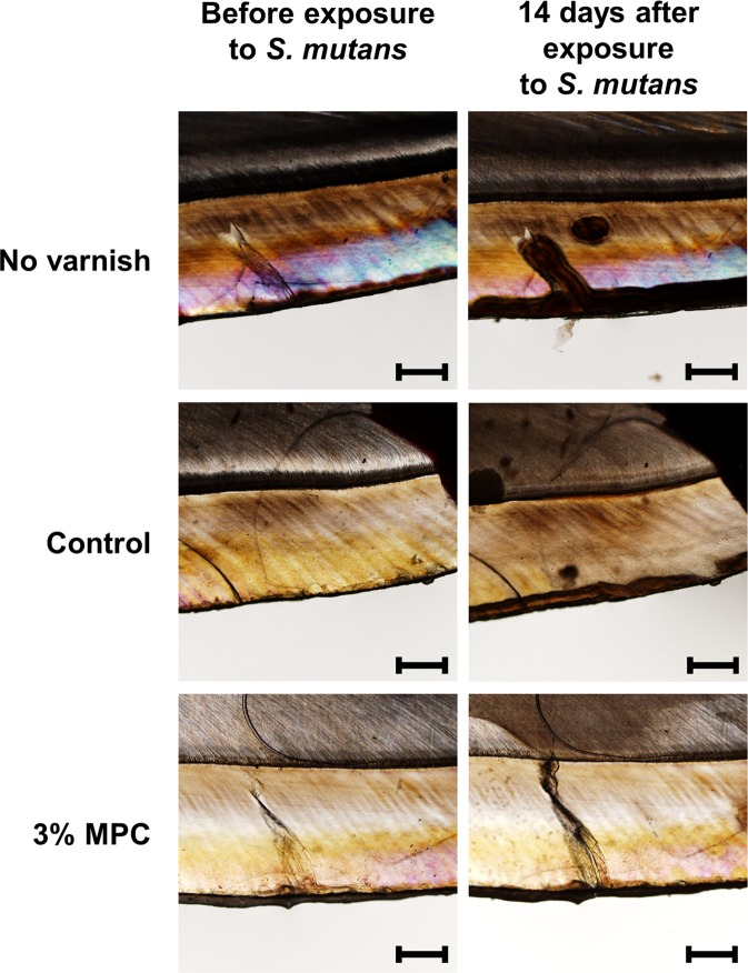 Representative polarized light microscopy images of a bovine tooth before and 14 days after exposure to BHI culture medium supplemented with 2% sucrose and bacterial inoculum. Specimens were treated with 0% MPC-LCFV (control), 3% MPC-LCFV, or no varnish. Scale bar is 500 µm.