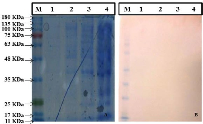 (A) Analysis of Mce-whole Protein expressed by SDS PAGE. (Left to Right), lane M: Protein molecular weight marker (SL7012, CinnaGen), lane 1: pET28a.Mce.whole Elution 1, lane 2: pET28a.Mce.whole Supernatant, lane 3: pET28a.Mce.whole Pellet, lane 4. pET28a.Mce.whole Crude; (B) Western blot analysis (from left to right) lane M: Protein molecular weight marker (SL7012, CinnaGen), lane 1: pET28a.Mce.whole Elution 1, lane 2: p1ET28a.Mce.whole Supernatant, lane 3: pET28a.Mce.whole Pellet, lane 4. pET28a.Mce.whole Crude.