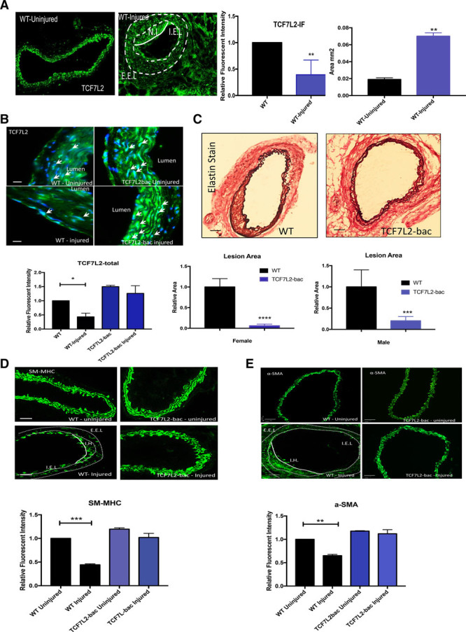 A – E , Response to mechanical injury in <t>TCF7L2</t> (transcription factor 7-like 2) overexpressing mice. A , Immunofluorescence (IF) staining of TCF7L2 in wild-type (WT) mouse carotid at baseline and post guidewire injury (relative fluorescent intensities/area and the tunica media (M) area are shown next to the figure. B , TCF7L2 IF intensity in heterozygote overexpressing (TCF7L2-bac) and WT mice before and after injury (relative fluorescent intensities shown underneath). C , Neointima (NI) formation and EVG (elastic tissue fibers-Verhoeff's Van Gieson) staining in carotid arteries of WT and TCF7L2-bac mice postguidewire injury. Quantifications of NI for both female and male WT and TCF7L2-bac mice postcarotid guidewire injury are shown underneath corresponding figures. The quantification is done by the ratio of intima/M surface area. D and E , Immunofluorescent assessment of SM-MHC (smooth muscle cell myosin heavy chain) and α-SMA (alpha smooth muscle cell actin; both in green) in carotids of TCF7L2-bac, and WT mice, before and after guidewire injury. The relative fluorescent intensities shown underneath. The yellow dotted lined in ( A ) demarcate the NI. *, **, ***, ****Significance with P