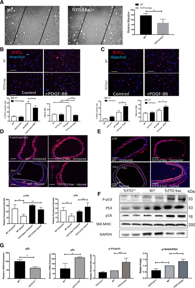 Cell migration and proliferation in TCF7L2 (transcription factor 7-like 2)-bac (mice overexpressing TCF7L2) and TCF7L2 +/− mice vascular Smooth muscle cell (VSMCs). A , In vitro scratch assay demonstrating slower TCF7L2-bac VSMC migration as compared to wild-type (WT) VSMC (the quantification is shown next to the figure). Area in between the solid black lines indicates the scratch in the VSMC culture. Relative migration in wound-healing assay was assessed as a percentage of the initial gap filled with cells. B and C , Proliferation assay with BrdU (bromodeoxyuridine) incorporation and cell count analysis with and without PDGF-BB (platelet-derived growth factor-BB) stimulation for 24 h in TCF7L2-bac and TCF7L2 +/− VSMC, respectively (quantification shown left underneath). D and E , immunofluorescence staining of carotid artery for P-p53 (phosphorylated TP53) and p16 protein in WT and TCF7L2-bac mice before and after injury (quantification shown underneath D ). F , Protein levels of P-p53, p53, p16, and SM-MHC (smooth muscle cell myosin heavy chain) in WT, TCF7L2-bac and TCF7L2 +/− mice VSMCs by Western blot analysis (quantification shown below, multiple comparison done by ANOVA). G , Relative mRNA expression of p53 in TCF7L2 +/− and TCF7L2-bac mice. *, **, and ***Significance with P