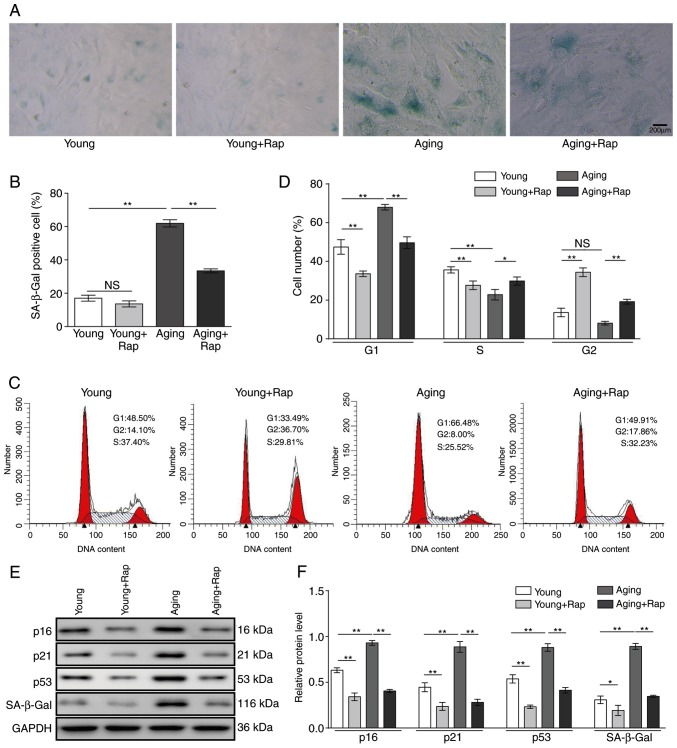 Rapamycin inhibits senescence in VSMCs and alleviates cell cycle arrest. Young and aging VSMCs were treated with 20 nM rapamycin for 12 h. (A) Cell senescence was measured by SA-β-gal staining. Representative images are shown. Scale bar, 200 µ m. (B) SA-β-gal-positive cell rates in the different groups. (C) Representative plots and (D) quantification of flow cytometry analysis for cell cycle phase distribution. (E) Protein expression levels of p16, p21, p53 and SA-β-gal were determined by western blotting. Representative blots are shown. (F) Quantitative analysis of indicated proteins. Results are presented as mean ± standard deviation (n=3). * P