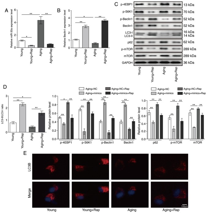 Rapamycin inhibits miR-30a expression and promotes autophagy in VSMCs. (A) Relative expression levels of miR-30a and (B) Beclin1 were determined by reverse transcription-quantitative polymerase chain reaction in young and aging VSMCs treated with 20 nM rapamycin for 12 h. (C) Representative blots of LC3, Beclin1, p-Beclin1, p62, mTOR, p-mTOR, p-S6K1 and p-4EBP1 protein expression levels in young and aging VSMCs treated with 20 nM rapamycin for 12 h. (D) Quantitative analysis for LC3-II/LC3-I ratio, Beclin1, p62, mTOR and p-mTOR protein expression. (E) Immunofluorescence analysis for LC3B in young and aging VSMCs treated with 20 nM rapamycin for 12 h. Results are presented as mean ± standard deviation (n=3). * P