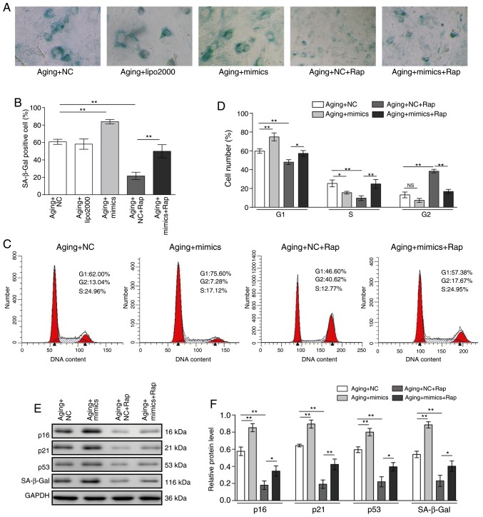 Rapamycin alleviates senescence and cell cycle arrest in VSMCs by inhibiting miR-30a. VSMCs were transfected with miR-30a mimics or negative control for 48 h, and then treated with 20 nM rapamycin for 12 h. (A) Senescence was determined by SA-β-gal staining. Representative images are shown. Scale bar, 300 µ m. (B) SA-β-gal-positive cell rates in the different groups. (C) Representative plots and (D) quantification of flow cytometry analysis for cell cycle phase distribution. (E) Protein expression levels of p16, p21, p53 and SA-β-gal were determined by western blotting. Representative blots are shown. (F) Quantitative analysis of indicated proteins. Results are presented as mean ± standard deviation (n=3). * P