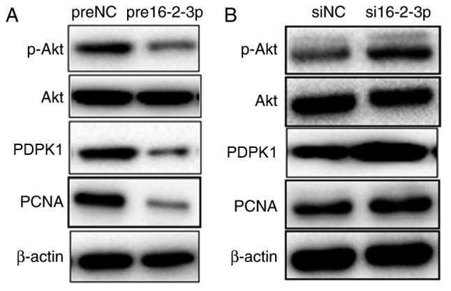 miR-16-2-3p regulates the PDPK1/Akt signaling pathway in MPMCs. At 72 h after transfection with (A) pre16-2-3p/preNC or (B) si16-2-3p/siNC, MPMCs were subjected to western blot analysis to detect PDPK1, p-Akt, total Akt and PCNA expression. Independent experiments were repeated at least 3 times. miR, microRNA; PDPK1, 3-phosphoinositide-dependent protein kinase-1; Akt, protein kinase B; MPMC, maxillary primordium mesenchymal cells; pre16-2-3p, precursor miR-16-2-3p; preNC, precursor negative control; si, small interfering; NC, negative control; p, phosphorylated; PCNA, proliferating cell nuclear antigen.
