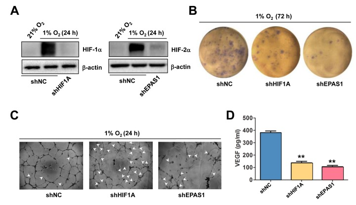 Knockdown of either HIF-1α or HIF-2α impairs hypoxia-induced angiogenesis and VEGF production in ECs. ( A ) HUVECs were transfected with pLKO.1 constructs encoding shRNA specifically targeting HIF-1α and HIF-2α, as well as scramble sequence as negative control (shNC). As the basal levels of HIF-1α or HIF-2α in HUVECs were relatively low, these transfected cells were exposed to 1% O 2 (21% O 2 as normoxia control) for 24 hrs, after which Western blot analysis was performed to confirm shRNA knockdown of HIF-1α and HIF-2α, respectively. ( B , C ) HUVECs expressing HIF-1α or HIF-2α shRNA were then exposed to 1% O 2 for the indicated intervals, followed by colony formation assay ( B , 72 hrs) and Matrigel-based tube formation assay ( C , 24 hrs). Representative microscopic images for at least three independent experiments were shown. Arrowheads indicate unclosed loops of vascular structure. ( D ) In parallel, the VEGF level was measured by ELISA assay after cultured for 72 hrs under 1% O 2 . Values represent the means ± SD for at least three independent experiments performed in triplicate. ** P