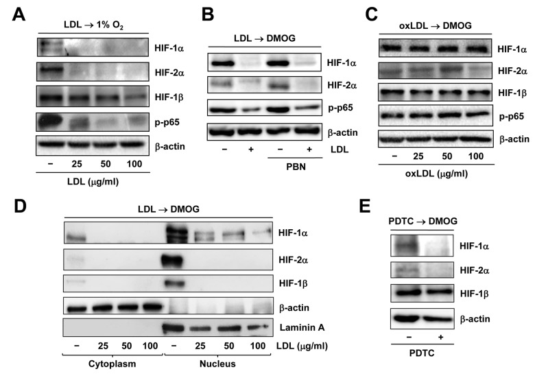 Native LDL, but not oxLDL, inhibits activation of HIF and NF−κB signals induced by hypoxia. HUVECs were treated as follows: ( A ) pre-treated with LDL (100 μg/ml) for 48 hrs, followed by incubation under hypoxic (1% O 2 ) condition for additional 48 hrs; ( B ) pre-treated with LDL (100 μg/ml) in the presence or absence of the free radical scavenger PBN (2 mM) for 48 hrs, and then exposed to the PHD inhibitor DMOG (1 μM) for additional 72 hrs; ( C ) pre-treated with the indicated concentrations of oxidized LDL (oxLDL, μg/ml) for 48 hrs, followed by DMOG (1 μM) for additional 72 hrs. After treatment, Western blot analysis was performed to monitor expression of HIF-1α, HIF-2α, and HIF-1β, as well as phosphorylation of NF-κB p65 (S536). ( D ) Alternatively, HUVECs were treated as described in panel 4B, after which cytoplasmic and nuclear fractions were separated and subjected to Western blot analysis for monitoring nuclear translocation of HIF-1α, HIF-2α, and HIF-1β. Blots were reprobed for β-actin and laminin A as loading controls for cytoplasmic and nuclear fractions, respectively. ( E ) HUVECs were pre-incubated with the NF-κB inhibitor PDTC (100 μM) for 4 hrs, followed by DMOG (1 μM) for additional 72 hrs, after which the protein levels of HIFs were monitored by Western blot analysis.