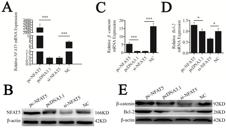 NFAT5 regulated the downstream genes of the Wnt signaling pathway. CHO-K1 cells were transfected with pc-NFAT5 , pcDNA3.1 and si-NFAT5, NC. (A) qRT-PCR was used to detect endogenous NFAT5 mRNA 24 h after transfection. (B) Western blot analysis was used to detect NFAT5 protein expression levels 48 h after transfection. (C, D) Twenty-four hours after transfection, the expression levels of β-catenin and Bcl-2 were determined by qRT-PCR. (E) Western blot analysis was used to detect endogenous β-catenin and Bcl-2 protein expression level. The data are represented as mean±S.D. of three independent experiments. * P