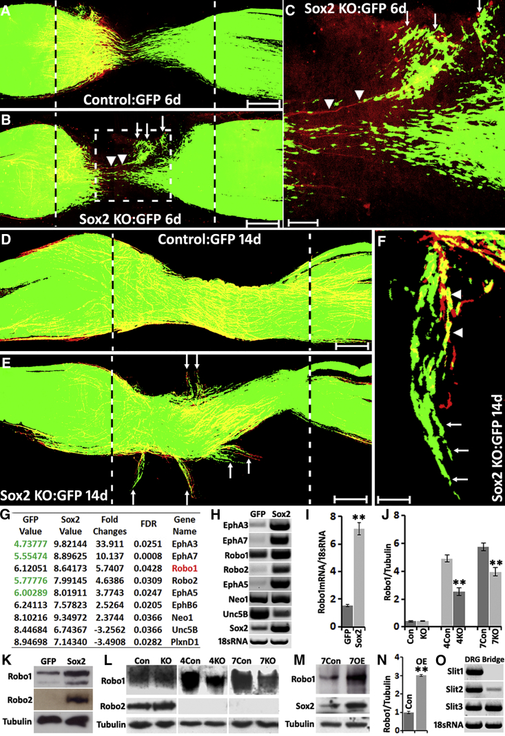 Ectopic Schwann Cell Migration in the Nerve Bridge of Sox2 KO Mice and Sox2 Regulating Robo1 Expression in SCs (A) Schwann cell (GFP+) migration from both proximal and distal nerve stumps in control mice 6 days after sciatic nerve transection injury. (B) Ectopic Schwann cell migration (white arrows) in the nerve bridge of Sox2 KO mice 6 days after transection injury. (C) Higher magnification image from (B, dotted-line square) showing regenerating axons (labeled with neurofilament, red, indicated by arrowheads) following the ectopic migrating Schwann cells (white arrows) and leaving the nerve bridge. (D) Schwann cells stayed in the nerve bridge in control mice at 14 days following sciatic nerve transection injury. (E) Ectopic migrating Schwann cells (white arrows) leaving the nerve bridge in Sox2 KO mice at 14 days after injury. (F) Ectopic migrating Schwann cells (white arrows) localizing in front of regenerating axons (indicated by arrowheads) of Sox2 KO mice. Scale bar in (A, B, D and E) represents 200 μm, in (C) represents 60 μm, and in (F) represents 30 μm. (G and H) Microarray data (G) and RT-PCR (H) from control and Sox2-overexpressing Schwann cells. Values in (G) represent the fluorescence intensity of dye-labeled cDNA fragments that have hybridized to the probes on the microarray chip. (I) qRT-PCR validation of Robo1 mRNA upregulation in Sox2-overexpressing Schwann cells, n = 3. (J) Quantification of Robo1 protein levels in the distal nerve stump of control (Con) and Sox2 KO mice at 4 and 7 days after injury, n = 3. (K) Western blots showing Robo1 and Robo2 protein upregulation in Sox2-overexpressing Schwann cells. (L) Western blots comparing Robo1 and Robo2 protein levels in the distal nerve stump of control and Sox2 KO mice at 4 and 7 days after injury. (M) Western blot comparing Robo1 protein levels in the distal nerve stump of control (Con) and Sox2-overexpressing (OE) mice at 7 days following injury. (N) Quantification of Robo1 protein levels from (M), n = 3. (O) RT-PCR showing that Slit3 is highly expressed in the nerve bridge at 7 days after injury; dorsal root ganglion (DRG) samples have been used as positive controls. ∗∗ in (I), (J), and (N) indicate p