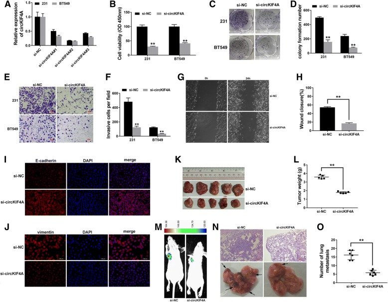 Knockdown of circKIF4A inhibits proliferation and metastasis of TNBC a si-circKIF4A #2 successfully knocked down circKIF4A. b A CCK-8 assay to detect cell proliferation. c A colony formation assay to detect cell colony-forming ability. d Colony formation number was quantified by ImageJ. e A Transwell assay to assess cell migratory ability. f The number of invasive cells was quantified by ImageJ. g A wound-healing assay to assess cell migratory capability. h Wound closure was quantified by ImageJ. i-j Immunofluorescence staining of E-cadherin and <t>vimentin.</t> k Xenograft models were established. l Summary of tumor weights. m Representative image of luciferase signals of lung metastatic nodules. n Representative images of lung metastatic nodules and HE-stained sections. o The number of metastatic nodules was quantified. ** P