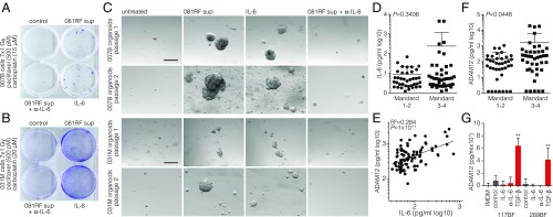 Stroma-derived IL-6 confers resistance to radiochemotherapy in EAC patients. ( A ) Clonogenic assays were performed on 007B cells after receiving one dose of the indicated cytostatic agents and seven doses of 1-Gy radiation. Cells were cultured in the following conditions for 10 d before the assay: control, 081RF supernatant, 081RF supernatant + IL-6–neutralizing antibody (500 ng/mL), or recombinant IL-6 (2 ng/mL). ( B ) As for A , using 031M cells. ( C ) The 007B and 031M organoid cultures were exposed to conditions as for A and B . The culture conditions were maintained throughout the assay, and morphology was monitored by phase-contrast microscopy. Shown are passage 1 (4 wk after treatment) and passage 2 (10 d after passage 1). (Scale bar: 200 μm.) ( D ) Blood was drawn and processed for serum storage from pretreatment EAC patients seen at the Academic Medical Center (AMC) ( n = 80). All patients then received the neoadjuvant CROSS regimen, and Mandard score was determined by a pathologist. IL-6 serum levels of pretreated EAC patients were measured using ELISA. ( E ) The same serum samples as for D were used to measure ADAM12. Correlation of serum IL-6 and ADAM12 levels was determined on all samples, including those with blank measurements. The log-scale plot excludes blanks. ( F ) As for D , showing ADAM12 serum levels. Graphs show means ± SD. Significance was tested by the Mann–Whitney U test. ( G ) Indicated CAF lines were treated with IL-6 (10 ng/mL), IL-6–neutralizing antibody (1 µg/mL), or TGF-β (5 ng/mL) for 3 d. Supernatant was harvested after an additional 7 d, and ADAM12 levels were analyzed by ELISA. ** P