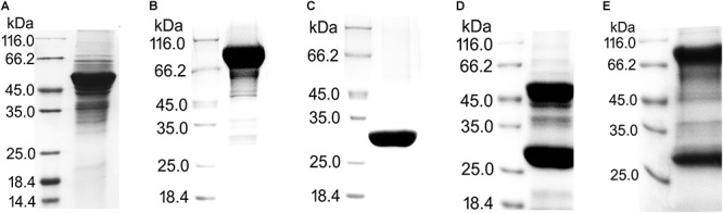 Purification of recombinant proteins with GST tags for pull-down assays. (A) UreA fused with GST tag on its N-terminus (GST-UreA). (B) UreB fused with GST tag on its N-terminus (GST-UreB). (C) GST tag. (D) UreA fused with GST tag on its C-terminus (UreA-GST). (E) UreB fused with GST tag on its C-terminus (UreB-GST). The recombinant proteins with GST tags were all purified as follows: The bacterial cells were disrupted in Tris-HCl (50 mM, pH 8.0) and centrifuged at 11,000 rpm for 30 min. The supernatant was then incubated with glutathione Sepharose 4B beads overnight with gentle inversion. Next, the beads were washed three times with Tris-HCl (50 mM, pH 8.0) and eluted with glutathione (reduced form) to a final concentration of 10 mM. During the purification of UreA-GST and UreB-GST, a large amount of cleaved GST tag (about 26 kDa) was also eluted from the beads.