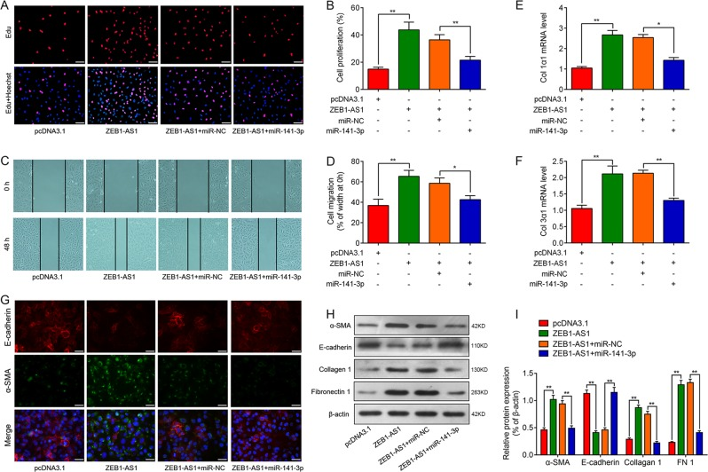 lncRNA ZEB1-AS1 contributes to fibrogenesis in alveolar type II epithelial cells by inhibiting the function of miR-141-3p. a , b EdU incorporation assay was used to assess the effect of ZEB1-AS1 on cells proliferation in RLE-6TN with or without upregulation of miR-141-3p. Scale bar = 100 μm. c , d Wound-healing assay reveals the effect of ZEB1-AS1 on cell migration in RLE-6TN cells with or without upregulation of miR-141-3p. Scale bar = 200 μm. RT-qPCR was performed to measure the expression of Col 1α1 ( e ) and Col 3α1 ( f ) in RLE-6TN cells following co-transfection of pcDNA3.1 or ZEB1-AS1 vector, miR-141-3p or miR-NC. g Representative images of immunofluorescence staining in each group to determine protein expression of E-cadherin (red) and a-SMA (green) accompanied with nuclei stained by DAPI (blue) in RLE-6TN cells in groups, as indicated. h , i Western blot analysis was performed to measure the expression of epithelial–mesenchymal transition (EMT)-related proteins α-SMA, E-cadherin, Collagen 1, and Fibronectin 1 (FN1), and β-actin was used as a loading control (means ± SD, n = 3). * P