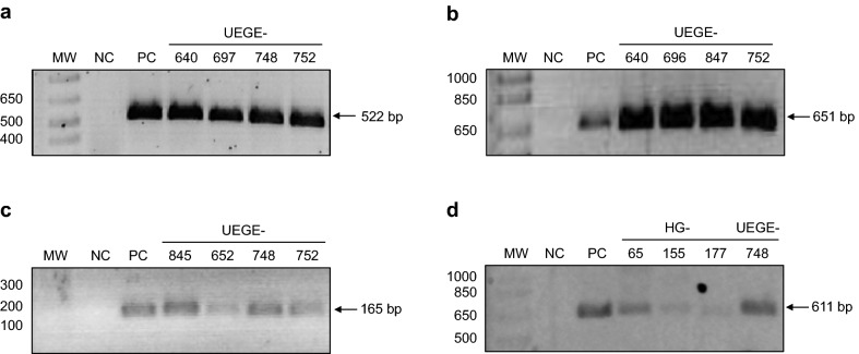 Representative gels of PCR amplified fragments. a 16S RNA fragment. Lanes: MW—molecular weight marker (bp), NC—negative control, PC—positive control (DNA from strain ATCC 43504), 4 to 7—clinical isolates UEGE-640, UEGE-697, UEGE-748, and UEGE-752. b cagL fragment amplified with the first set of primers (651 bp). Lanes: MW—molecular weight marker (bp), NC—negative control, PC—positive control (DNA from strain ATCC 43504), 4 to 7—clinical isolates UEGE-640, UEGE-696, UEGE-847, and UEGE-752. c cagL fragment amplified with the second set of primers (165 bp). Lanes: MW—molecular weight marker (bp), NC—negative control, PC—positive control (DNA from strain HP26695), 4 to 7—clinical isolates: UEGE-845, UEGE-652, UEGE-748, and UEGE-752. d cagL fragment amplified with the third set of primers (611 bp). Lanes: MW—molecular weight marker (bp), NC—negative control, PC—positive control (DNA from strain HP26695), 4 to 7—clinical isolates: HG-65, HG-155, HG-177, and UEGE-748
