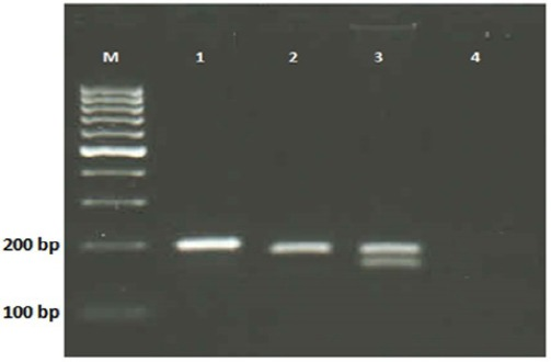 The <t>NdeI</t> Restriction Profiles of DPYD Gene IVS14+1G > A Polymorphism on 3% Agarose Gel Electrophoresis (1X TBE). Lane M shows DNA ladder (100bp); Lane 1 shows undigested <t>PCR</t> product (198 bp); Lane 2 shows wild type genotype (181 bp); Lane 3 shows Heterozygous genotype (181 bp and 154 bp); Lane 4 shows negative control.