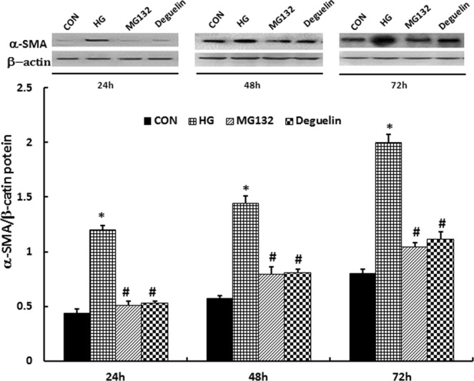 MG132 reversed the high-glucose induced increase of α-SMA. the levels of α-SMA was significantly higher than in CON and were reduced after administration of MG132 and deguelin for the indicted time. α-SMA expression in HMCs was detected by western blotting: HMCs were treated with 5.5 mmol/L (CON) or 30 mmol/L (HG) high glucose for 24 h, 48 h, and 72 h; then, the HG group was treated with MG132 or deguelin. CON: 5.5 mmol/L glucose; HG: 30 mmol/L glucose; MG132: 30 mmol/L glucose with MG132; Deguelin: 30 mmol/L glucose with deguelin; means ± SEM; N = 6; * P