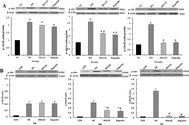 MG132 reversed the high-glucose induced increase of p-Akt(Ser 473 ). ( A ) p-Akt(Ser 473 ) expression in renal tissue was detected by western blotting: the level of p-Akt(Ser 473 ) in the DN group was significantly higher than in the NC group and was reduced after administration of MG132 and deguelin for the indicted time. NC: normal control group; DN: diabetic nephropathy group; MG132: diabetic nephropathy plus MG132 treatment group; Deguelin: diabetic nephropathy plus deguelin treatment group. ( B ) p-Akt(Ser 473 ) expression in HMCs was detected by western blotting: HMCs was treated with 5.5 mmol/L (CON) or 30 mmol/L (HG) high glucose for 24 h, 48 h, and 72 h; then, the HG group was treated with MG132 or deguelin. CON: 5.5 mmol/L glucose; HG: 30 mmol/L glucose; MG132: 30 mmol/L glucose with MG132; Deguelin: 30 mmol/L glucose with deguelin; means ± SEM; N = 6; * P