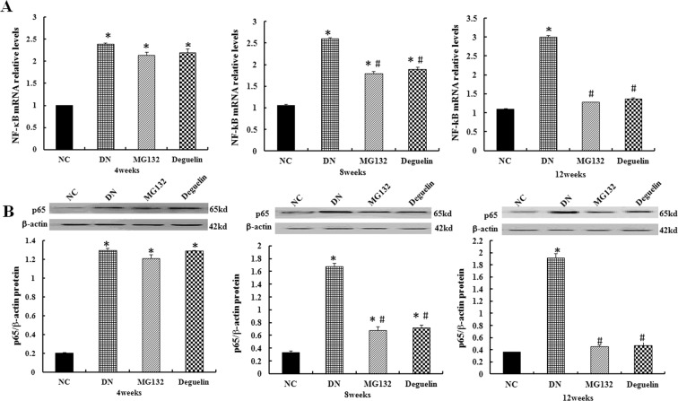 Effect of MG132 on the NF-κB level in DN rats. In DN rats, the relative mRNA level of NF-κB was significantly higher than in NC rats and was reduced after the administration of MG132 and deguelin for the indicted time ( A ). Likewise, the level of p65 was significantly higher than in NC rats and was reduced after administration of MG132 and deguelin for the indicted time ( B ). NC: normal control group; DN: diabetic nephropathy group; MG132: diabetic nephropathy plus MG132 treatment group; Deguelin: diabetic nephropathy plus deguelin treatment group. Means ± SEM; N = 6; * P