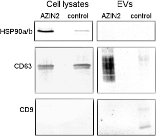 AZIN2 over-expressing T84 colon cancer cells release CD63 positive exosomes. Immunoblotting of cell lysates (15μg) and of exosomes (EV) (2 μg) isolated by ultracentrifugation from culture supernatant of AZIN2 cDNA over-expressing and control T84 colon cancer cells transfected with the empty vector using antibodies to HSP90a/b, CD63 and CD9.