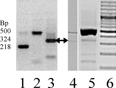 RT–PCR amplification products from different tissues using the primer set CCV-mut-F/-R. Lane 1: Epstein Barr virus–transformed B-lymphocytes cell <t>cDNA</t> preparations showing the 218 bp transcripts. Donor splice site: 5′-AGA CCT CCA G^G TGA GGA AGG and the acceptor splice site: TTT CCT CCA G^G CTG CAC CA-3′. Lane 2: A 500 bp genomic product. Lane 3: Universal Human reference <t>RNA</t> (mixed carcinoma) shows the 324 bp product. Donor splice site: 5′-AGA CCT CCA G^G TGA GGA AGG and acceptor splice site: CTC TCC CCA G^C CAG CGC CCT-3′. Lane 4: cDNA from a human fetal eye from DNase-treated RNA. A 324 bp product (arrow) is seen. Lane 5: cDNA from human lens epithelial cells (HLEpiC cat. No. 6554 lot no. 2531, ScienCell) not DNase treated. A genomic DNA (500 bp) and a 324 bp PCR product (arrow) are seen from the spliced RP1–140A9.1 . Lane 6: 100 bp ladder.